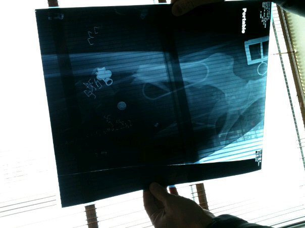 My broken femur