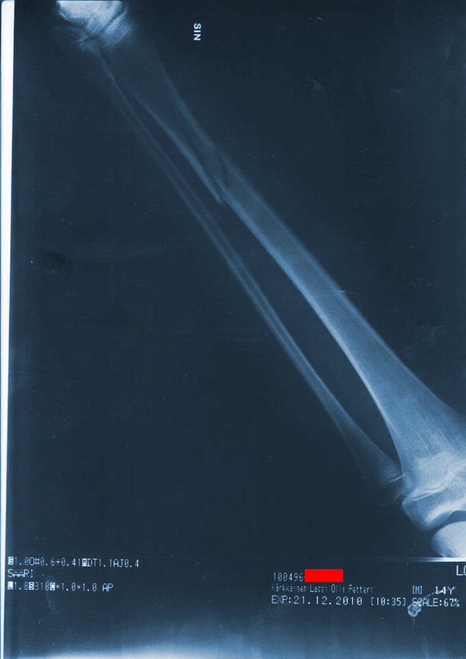 Last season shin x-ray