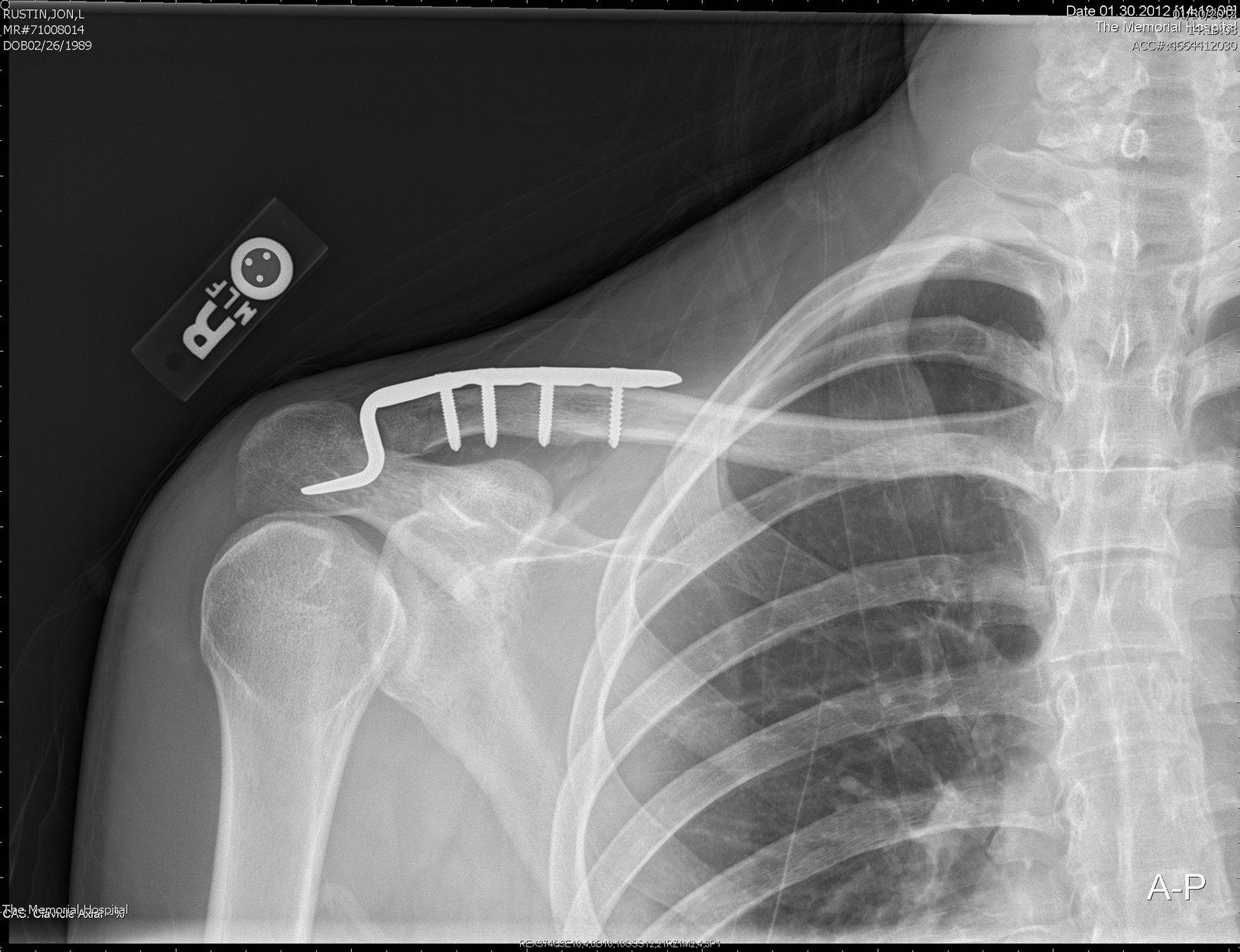 i haz x ray vission