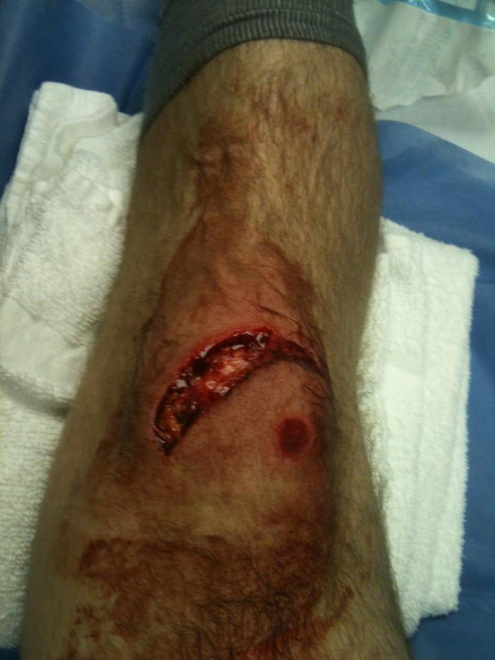 Down flat down, 32 stitches