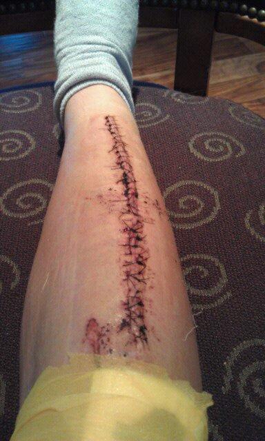 Last season injury