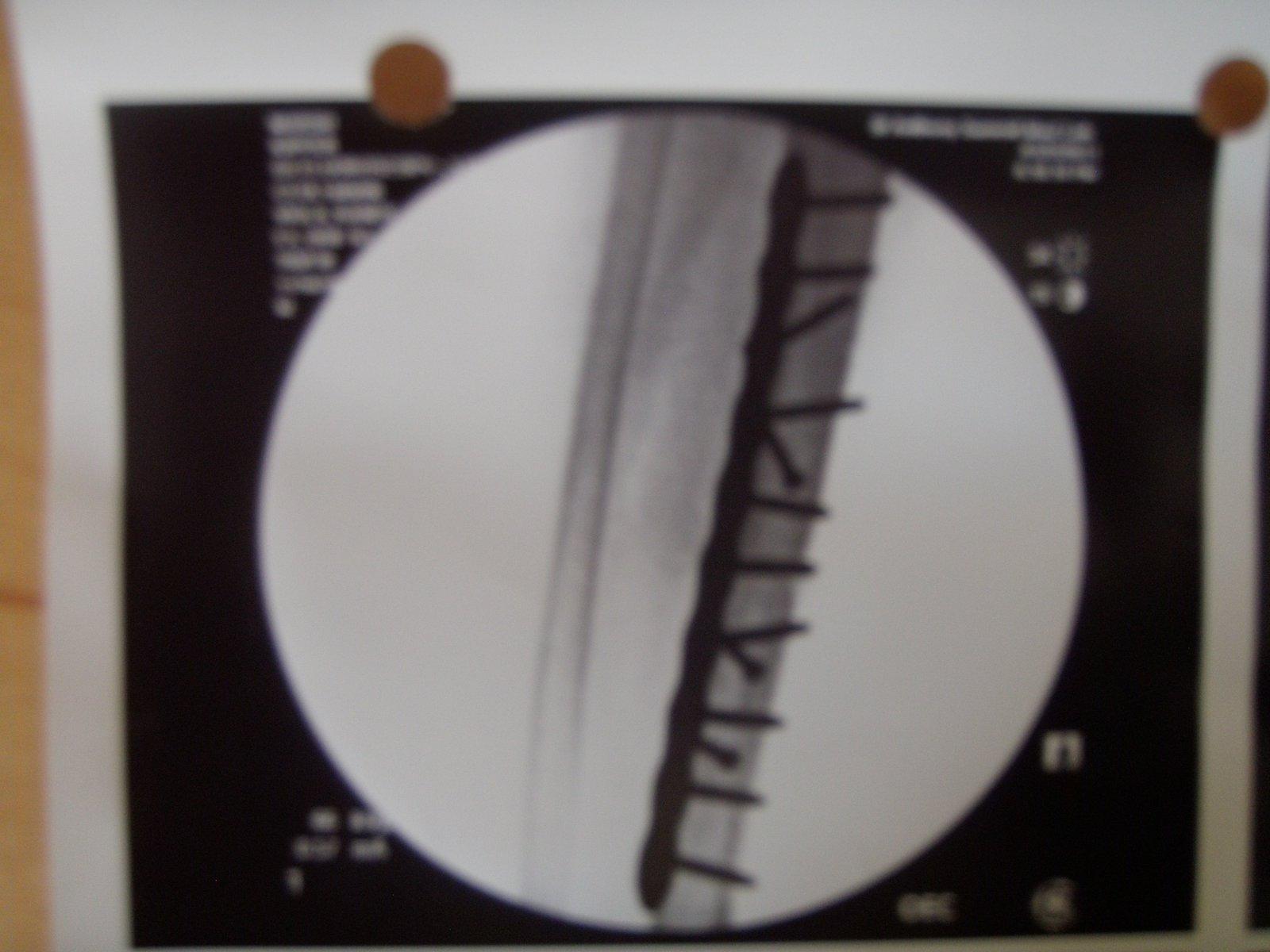 2011 injury hardware