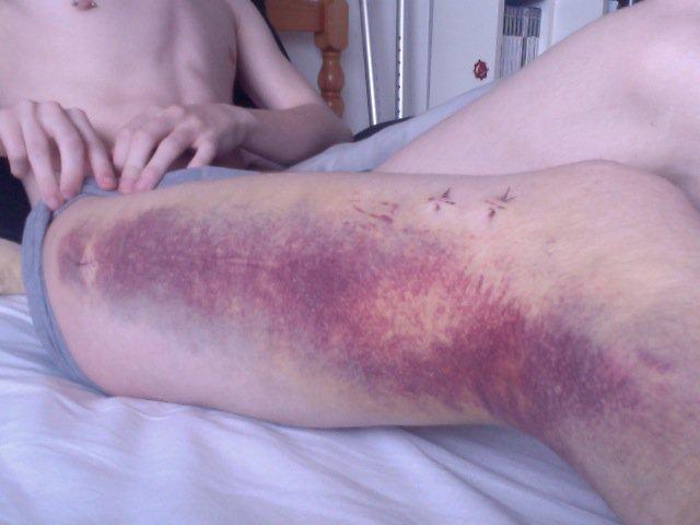 Brused leg