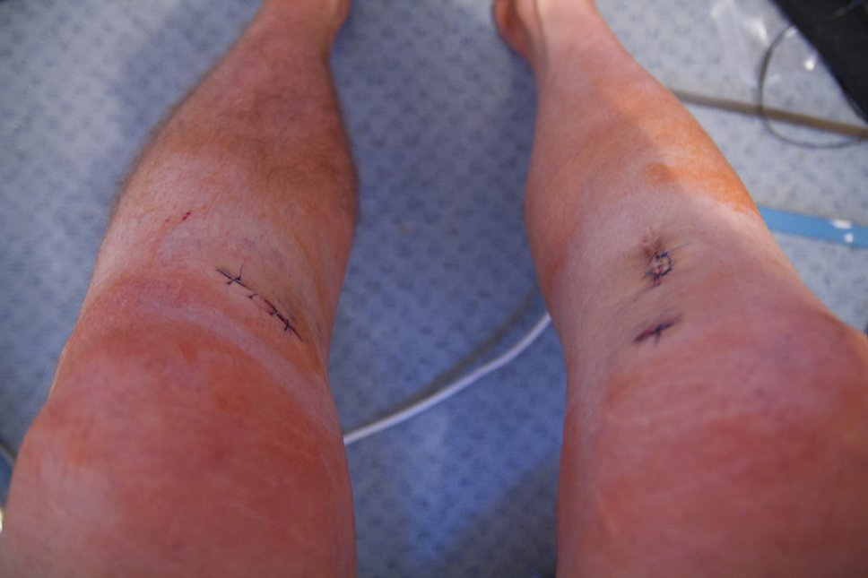 ACL surgery #1