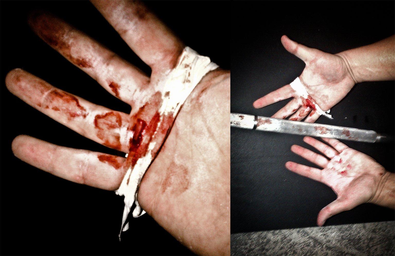 Torn hands at crossfit