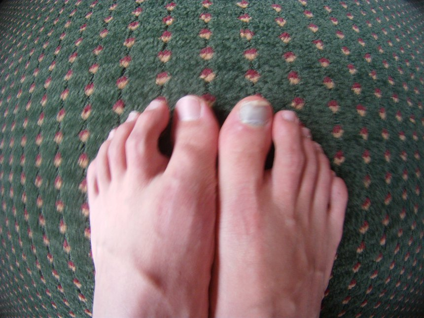 frostbite toe