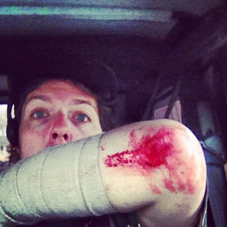 Broken Arm BOO BOO.