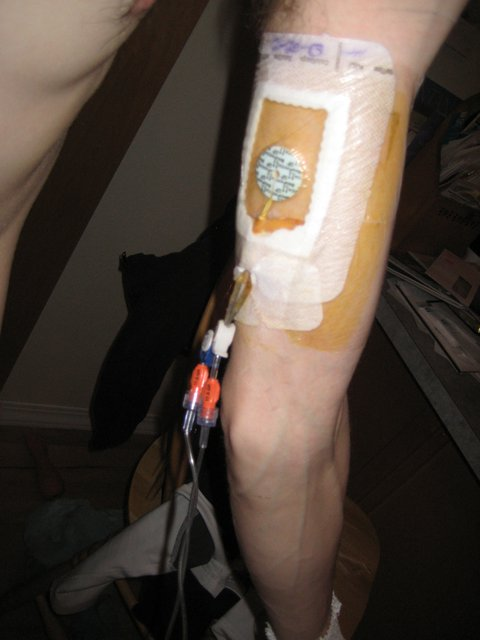 5 and 1/2 months on TPN, 24 hr a day iv nutrition