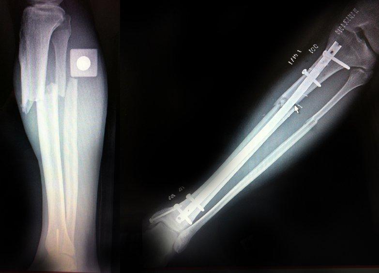 Cedrik Dion-Poitras | Bad bones