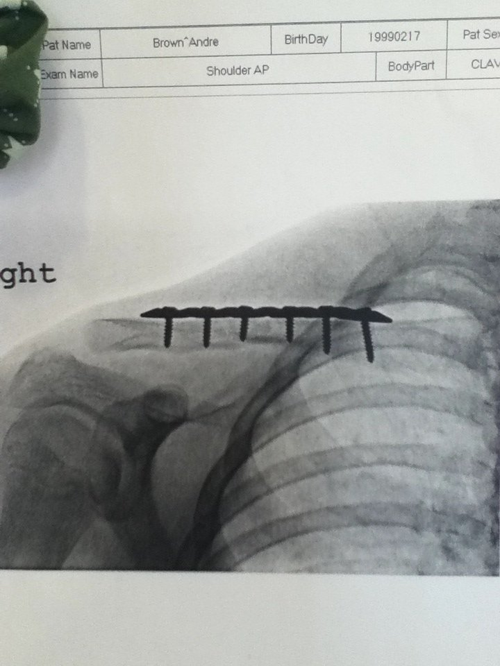 Broke my Collarbone